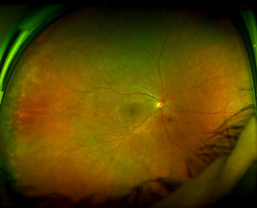 photographie d'un oeil normal