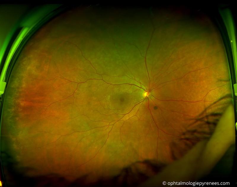La chirurgie de la rétine – ophtalmologiepyrenees.com
